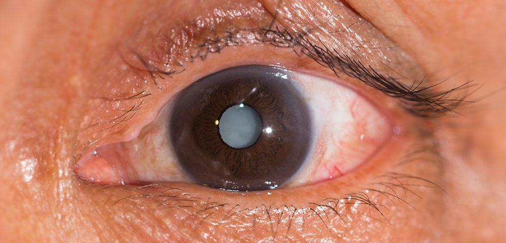 Cataract (staar)